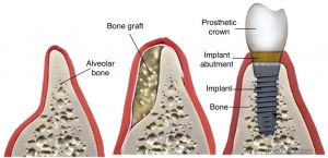 Bone Grafting for Dental Implants